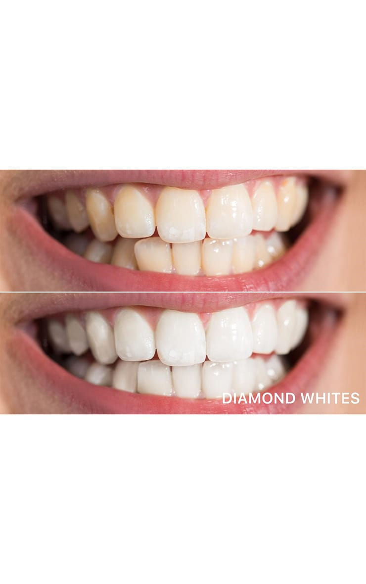 Diamond Whites Teeth Whitening Kit 6